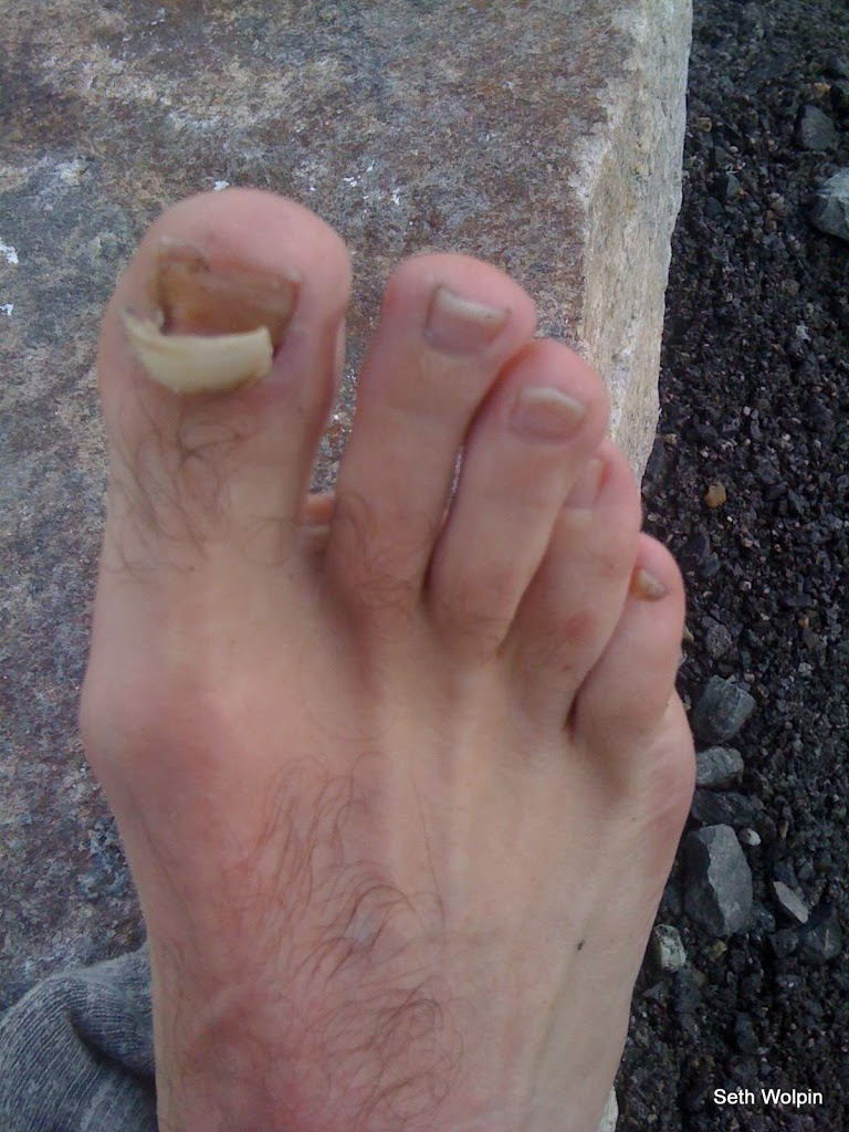 The true story of my Everest Toe Nail (ETN) - Seth Wolpin