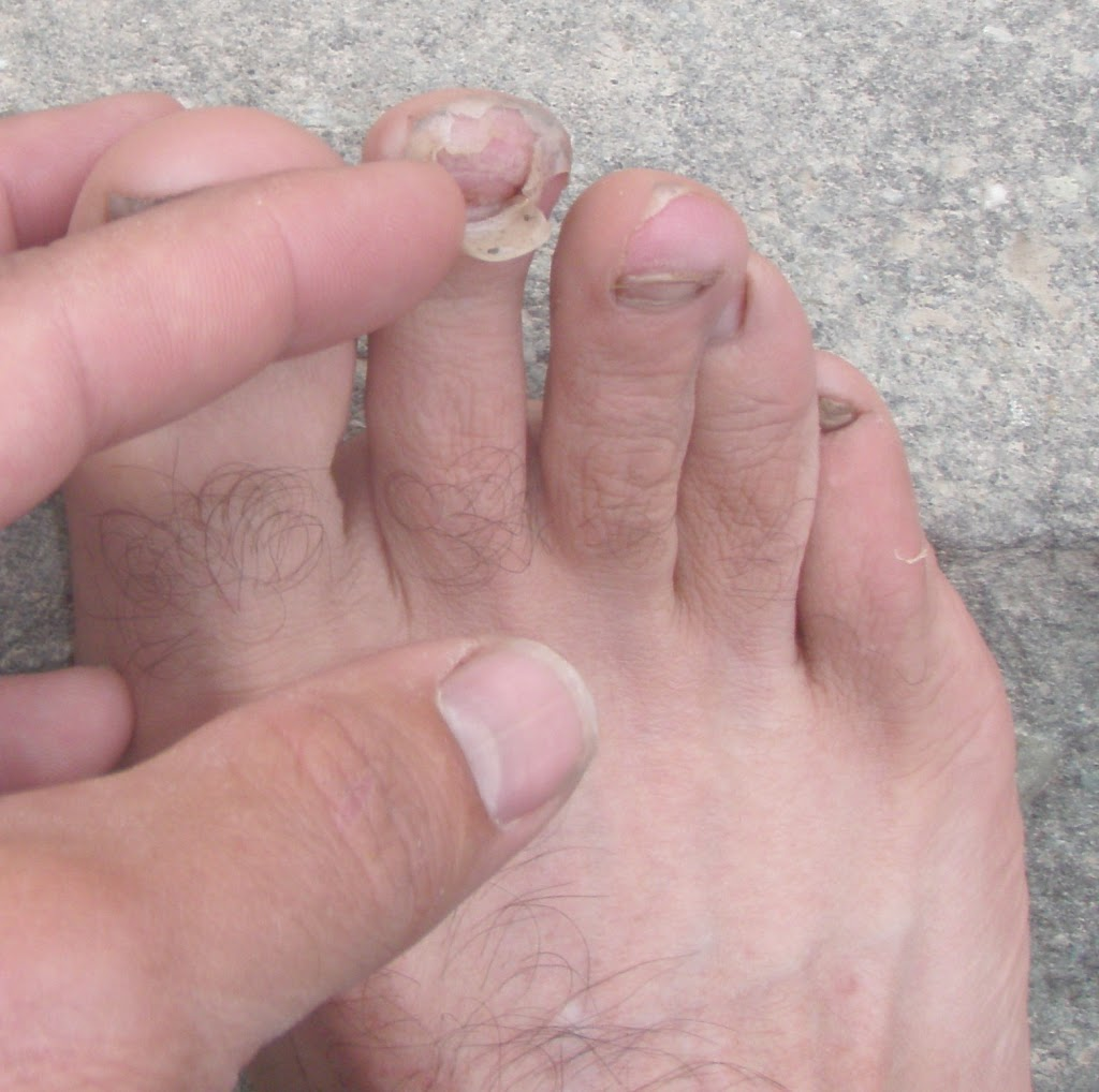 Third toenail this summer (See El Diablo by Stacey for #2)